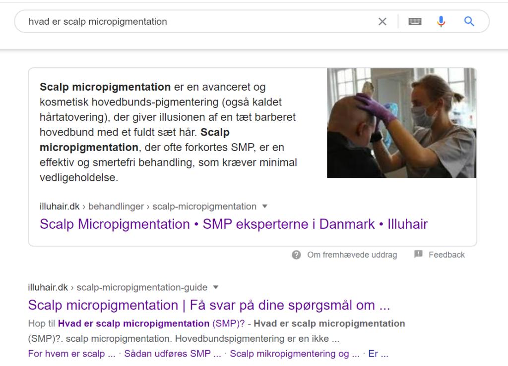 Søgning på scalp micropigmentation